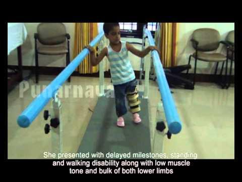Congenital Hemiparesis   An Ayurvedic approach – Punarnava Ayurveda Hospital