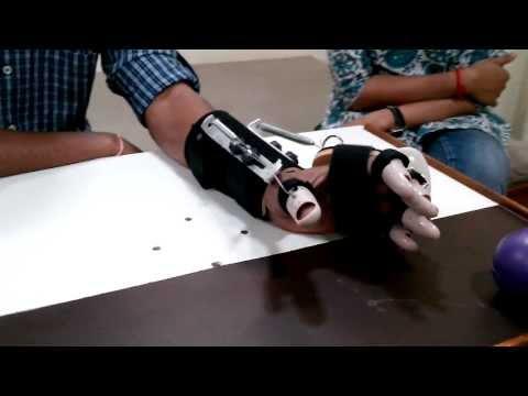 DHS (Dynamic Hand Splint) spastic hand splint