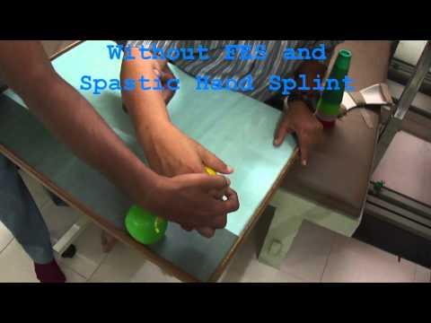 SHS (Spastic Hand Splint) for spastic hemiplegic hand at Hope Neuro care hospital, Ahmedabad