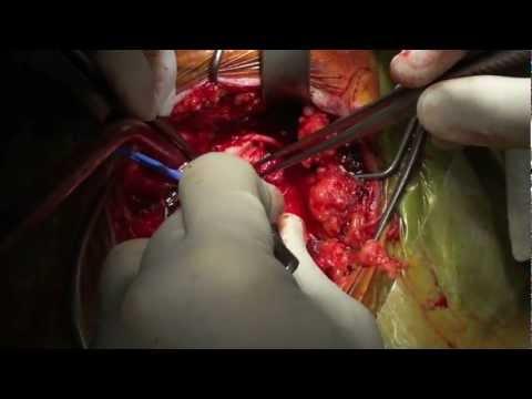 Sultan Technique – Emergency stroke surgery for right hemiplegia