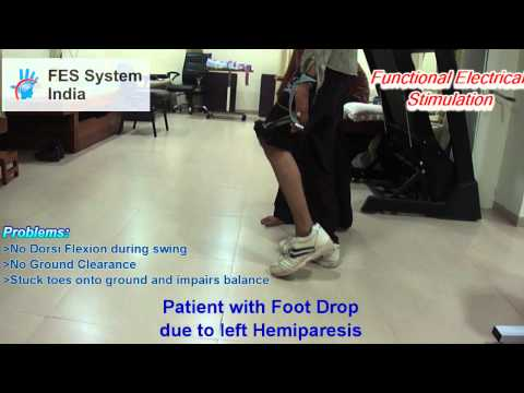 FES Functional Electrical Stimulation for Foot Drop due to Hemiplegia
