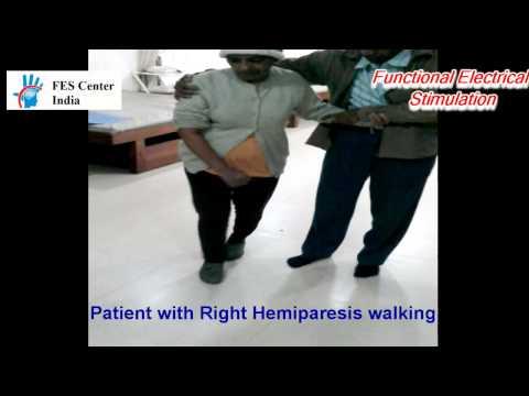 Gait Training with FES System (Functional Electrical Stimulation) for hemiplegic gait / stroke