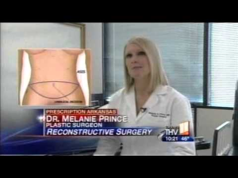 New Type of Reconstructive Breast Surgery