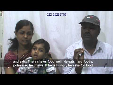 Stem Cell Therapy Treatment for Cerebral Palsy by Dr Alok Sharma, Mumbai, India.