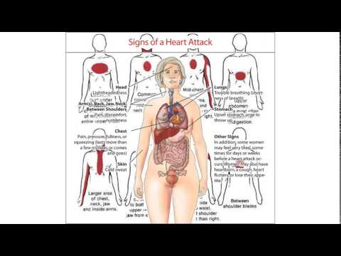 signs of a heart attack for women