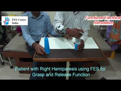 FES (Functional Elecrical Stimulation) For Hemiplegic Hand  Grasp and Release Function