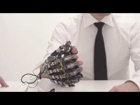 Hand of Hope – robotic arm after stroke rehabilitation exercise