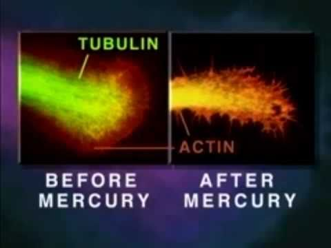 The effects of Mercury on the Brain – [Brain Damage / Neurological Disorders]