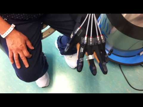 Patient 08 (hemiplegia) – Sequential exercise with Gloreha