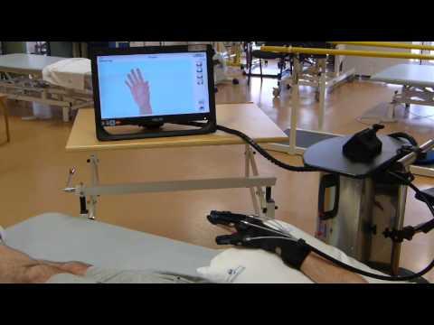 Patient 05 (hemiplegia) – Grasping exercise with Gloreha