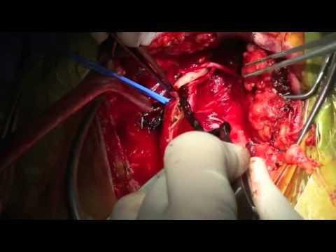 Sultan Technique   Emergency stroke surgery for right hemiplegia 360p