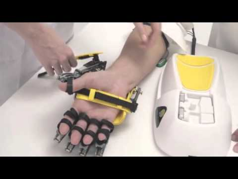Hand of Hope   robotic arm after stroke rehabilitation exercise