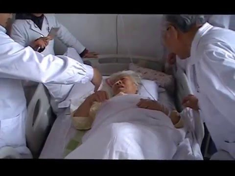 Zhu's scalp acupuncture for 80 y.o. with  hemiplegia