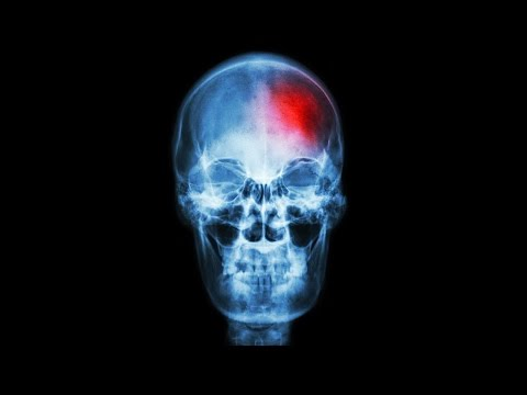 Signs Of A Stroke & What To Do – Dr. David Samadi