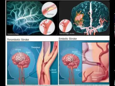 Symptoms and Treatment of Embolic Stroke