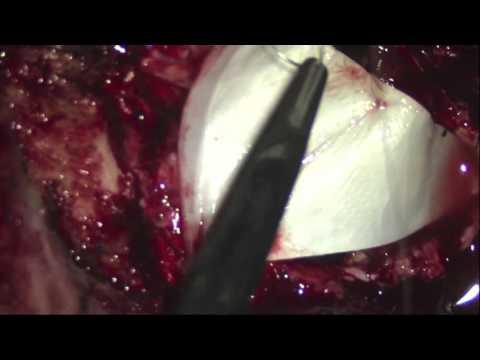 Posterior fossa decompression for acute bilateral cerebellar strokes by Sohum Desai, MD