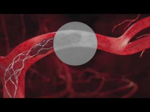 Eye on Health: Comprehensive Stroke Center