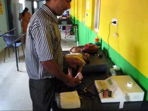 Recoup treatment, Semlarass, mucle spasticity, rehabilitation,  Bangalore, India