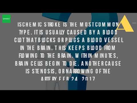 What Is An Ischemic Stroke?