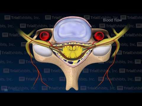 Arterial Vasospasm with Resulting Embolic Stroke