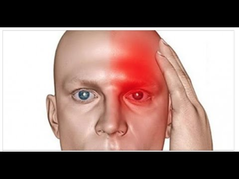 10 Signs That Indicate Silent Stroke And That Another One Will Follow!