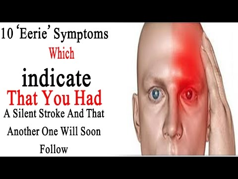 Stroke signs | 10 Eerie Symptoms Which Indicate That You Had A Silent Stroke And That Another