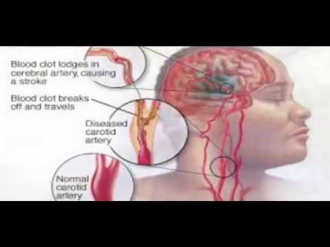 WHAT stroke symptoms and how to treat it?