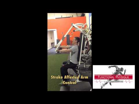 Arm Control After Stroke