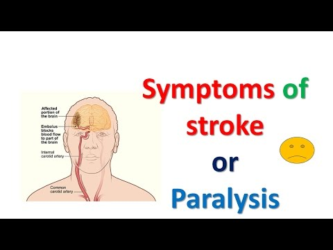 Symptoms of stroke