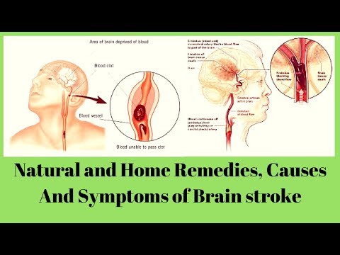 Natural and Home Remedies, Causes And Symptoms of Brain stroke