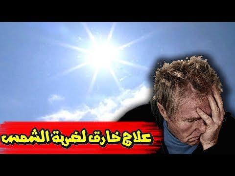 كيف أعالج ضربة الشمس بطرق الطبيعية | Treat the sun stroke
