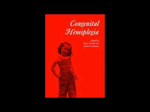 Download Congenital Hemiplegia
