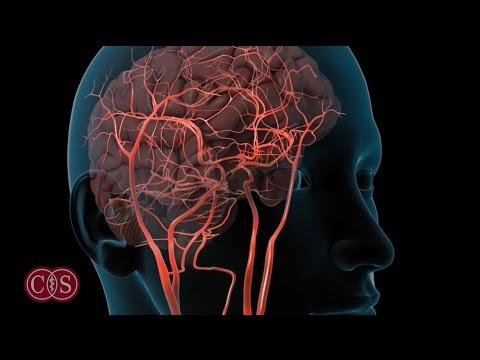 Symptoms of Stroke and Migraine   Cedars-Sinai