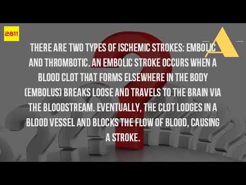 What Is An Embolic Stroke?
