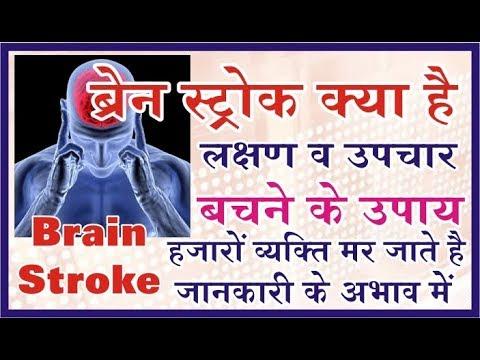 Brain Stroke जानकारी ही जीवन दे सकती है