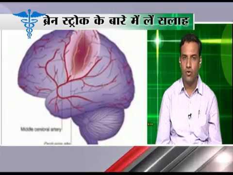Ayushman – Brain Stroke Ki New Technology (ब्रेन स्ट्रोक की नई टेक्नोलॉजी )