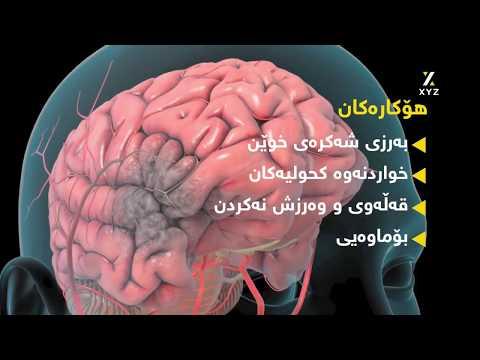 جەڵتەی دەماخ Brain stroke