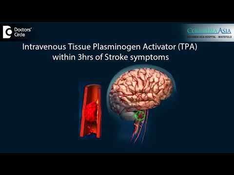 What is the importance of immediate treatment in Ischemic Stroke?-Dr. C Udaya Shankar