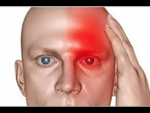 10 Symptoms Which Indicate That You Had A Silent Stroke And That Another One Will Soon Follow