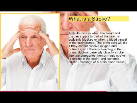 HealthQuiz:     Basics About Stroke Signs & Symptoms