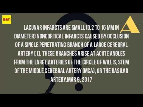 Where Is A Lacunar Infarct?