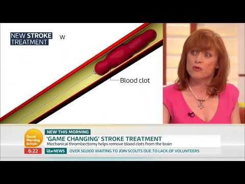 Game-Changing Stroke Treatment | Good Morning Britain