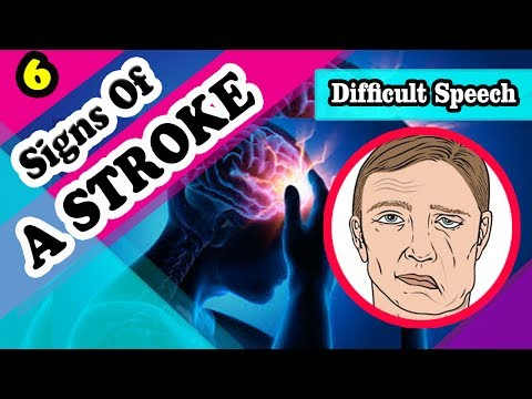 7 Signs And Symptoms Of A Stroke You Should Know