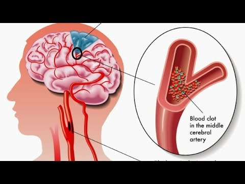 How Can you Spot a Stroke Before it Happens Here are The Signs you Need to Look for…