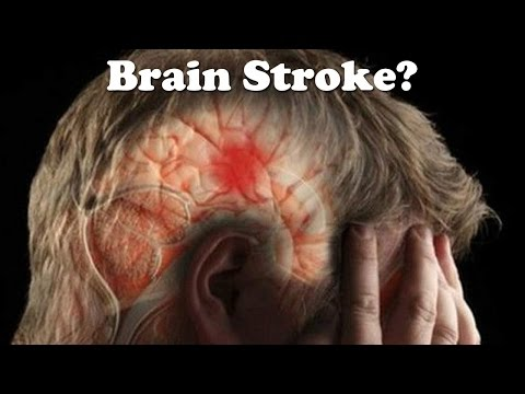 One Month Before Stroke  – Warning Signs and Symptoms of A Stroke You Must Know!