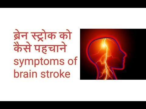 ब्रेन स्ट्रोक को कैसे पहचाने Symptoms of brain stroke (hindi)