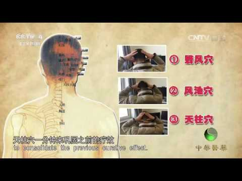 Sroke – Cerebrovascular Disease 9 – 11 : Acupuncture Massages to Prevent Stroke