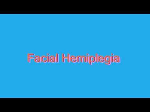 How to Pronounce Facial Hemiplegia