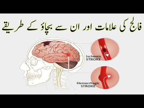 Falij Ki Alamat | Stroke Symptoms in urdu-hindi