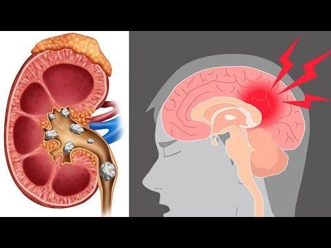 Popular Seasoning Linked To Stroke, Arthritis & Kidney Stones: Causes of Stroke and Arthritis